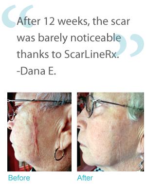 Severe acne scars celebrity news